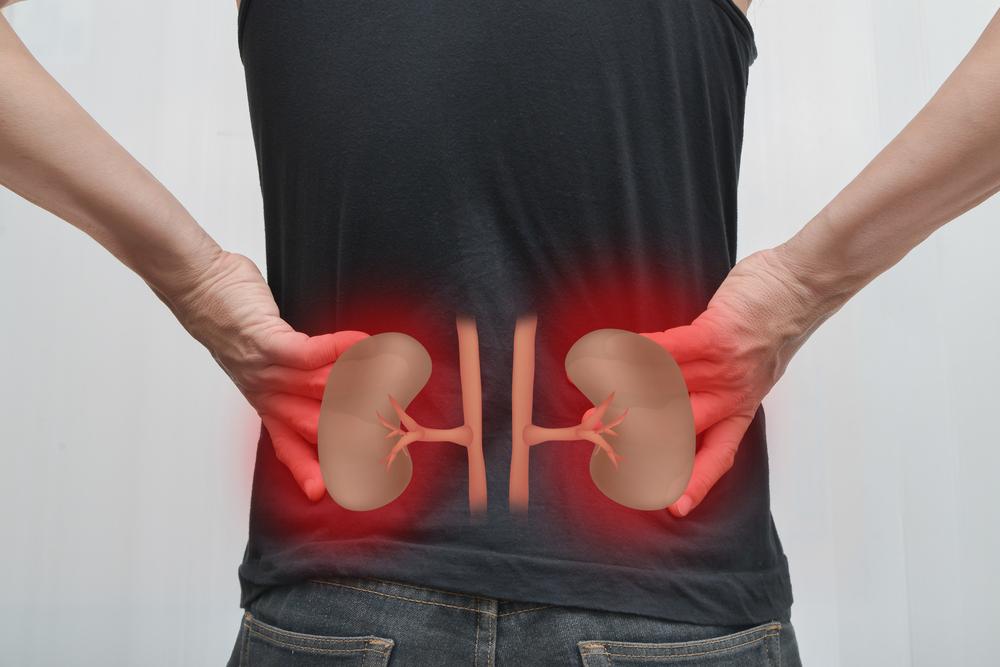 cálculos renais sinais e sintomas